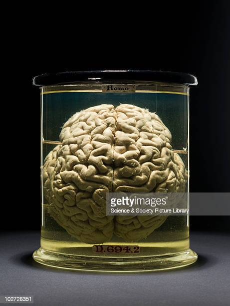 Human brain Front view Human brain Front view Black graduated background
