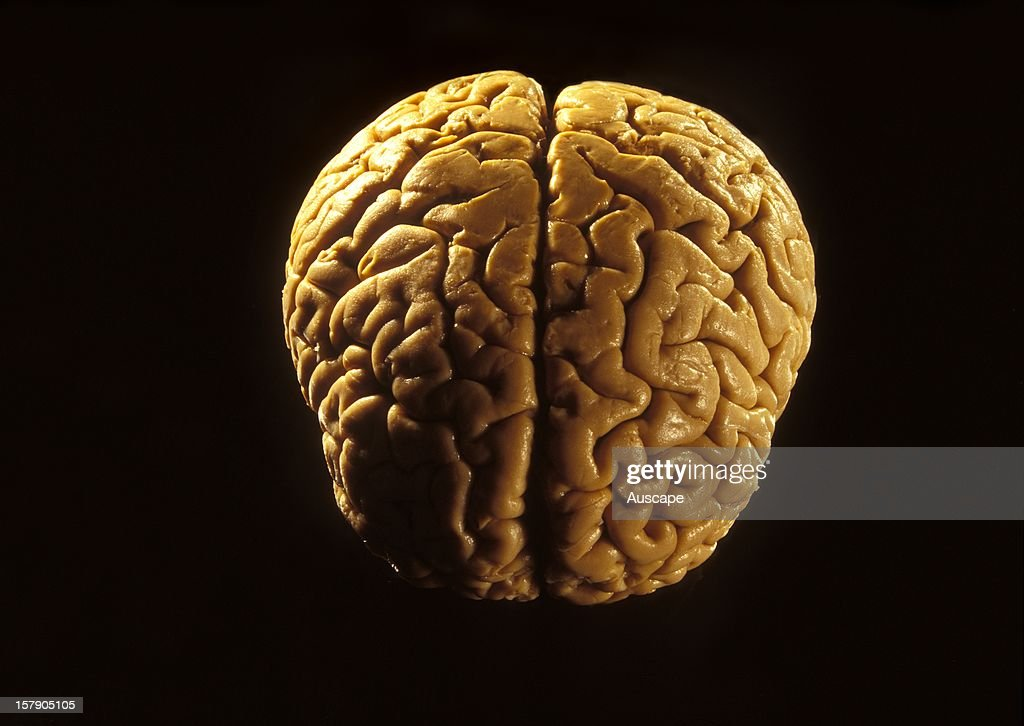 Temporal Lobe Stock Photos and Pictures | Getty Images