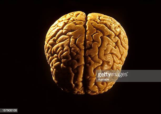 A human brain front view