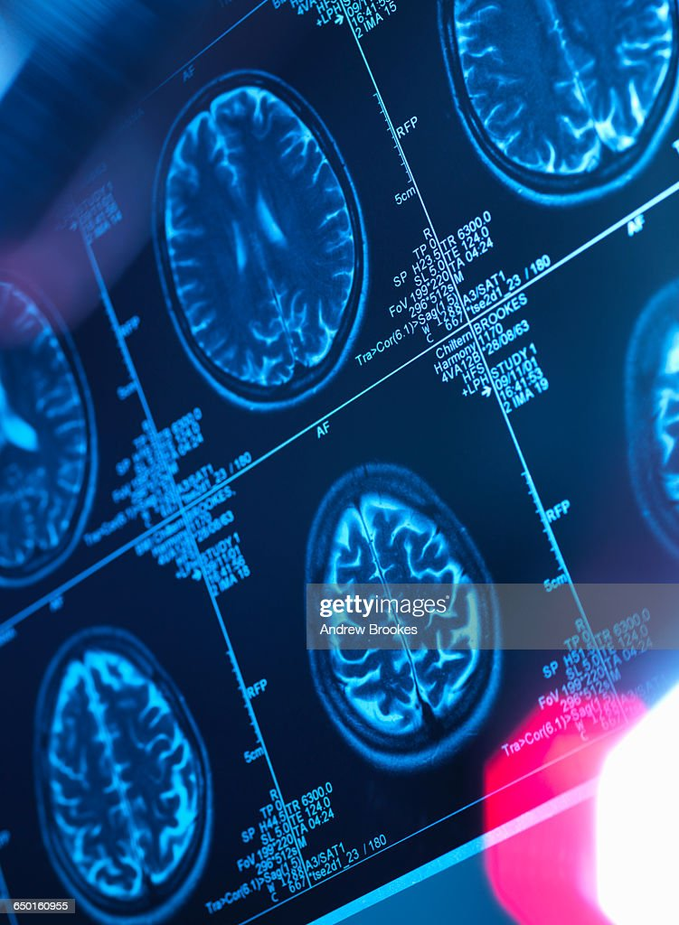 Human brain scan in a neurology clinic : Stock Photo