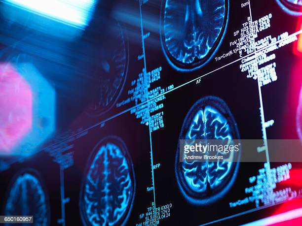 human brain scan in a neurology clinic - medical x ray stock pictures, royalty-free photos & images