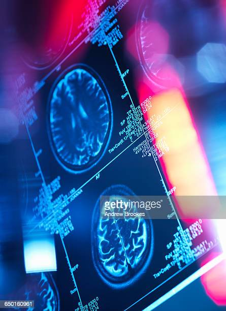 Human brain scan in a neurology clinic