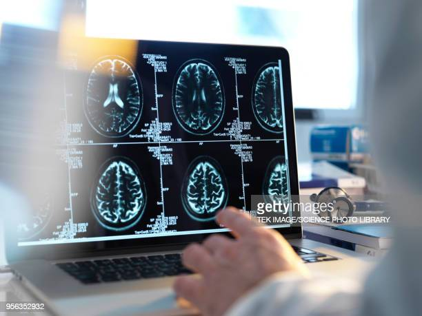 human brain scan - science photo library stock pictures, royalty-free photos & images