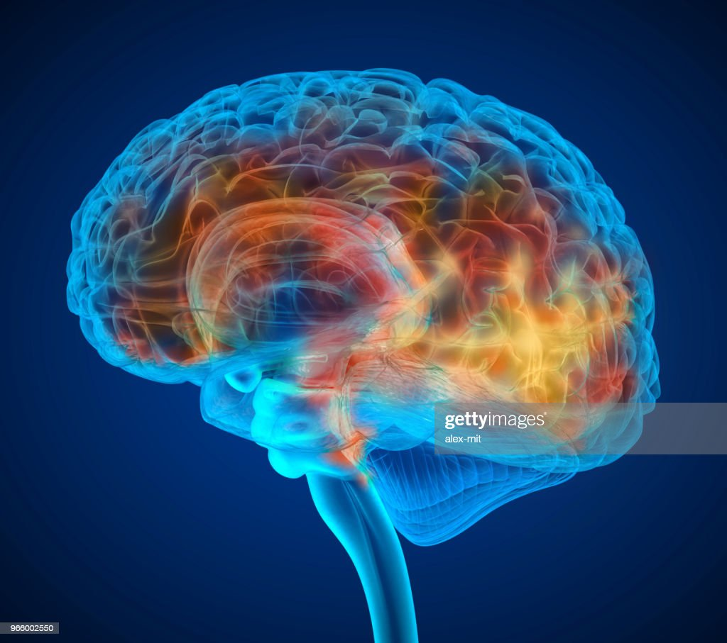 Human brain tumor X-ray scan , Medically accurate 3D illustration : Stock Photo