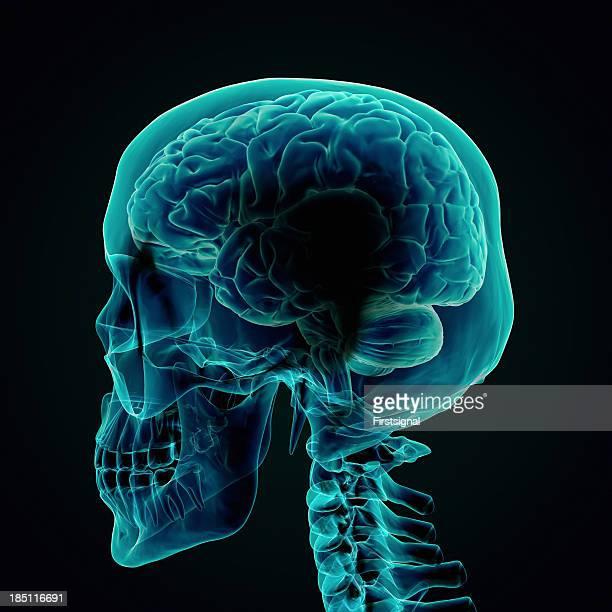 Menschliche Gehirn X-ray Stil