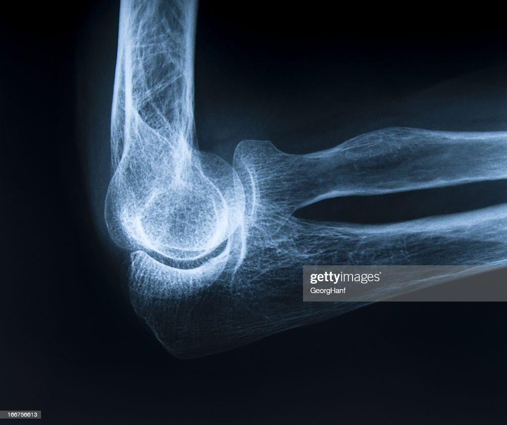 Human elbow bone : Stock Photo