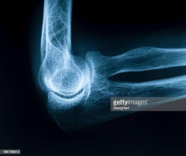 Human elbow bone