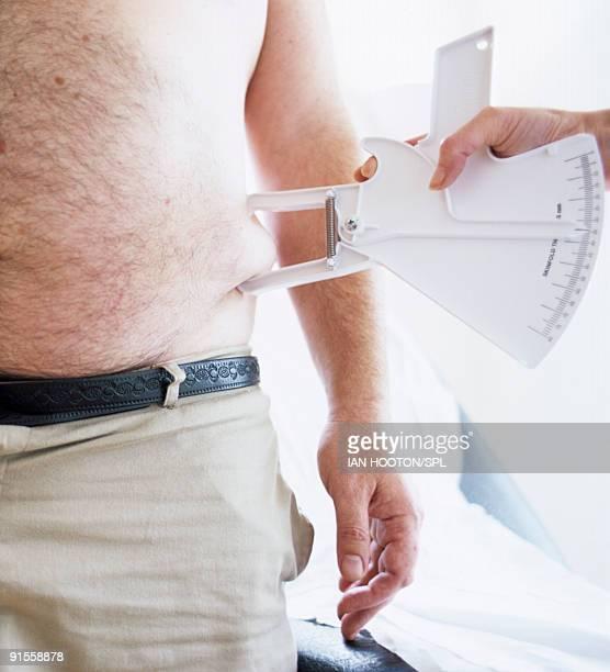Human hand holding caliper measuring fats on man's waist