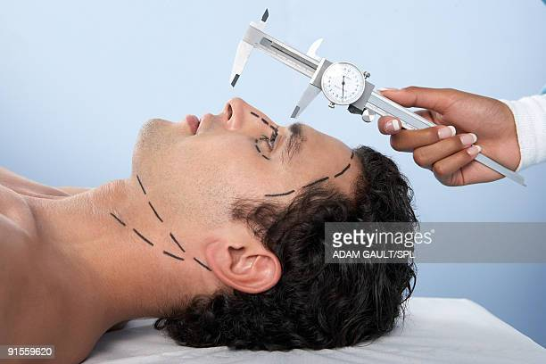 human hand holding vernier caliper to measure patients nose - plastic surgery stock pictures, royalty-free photos & images