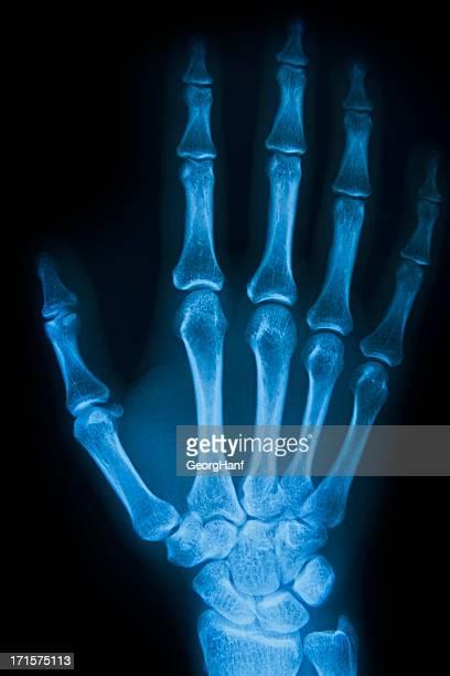 Human Handbone