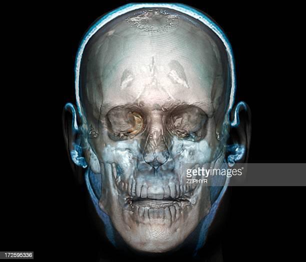 Human head, 3D CT scan