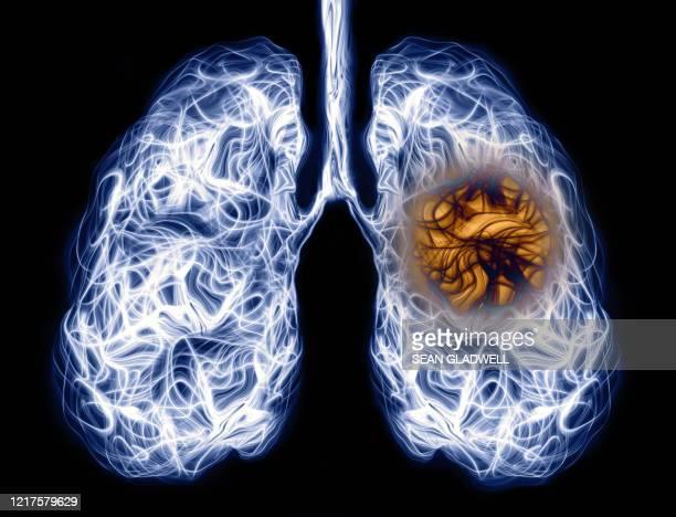 human lung infection - bacteria de la tuberculosis fotografías e imágenes de stock