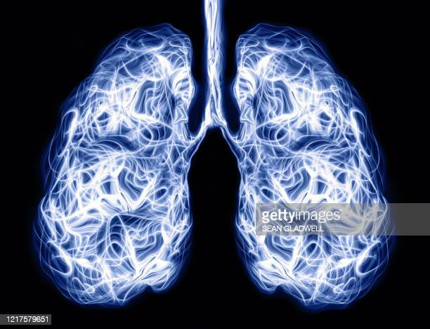 human lungs - scientific imaging technique stock pictures, royalty-free photos & images