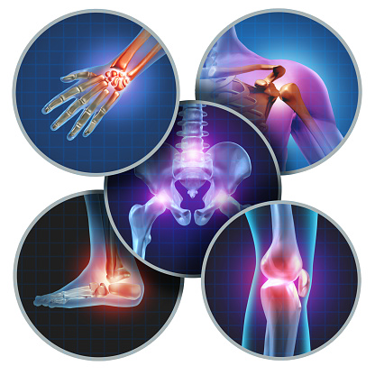 Human Painful Joints 905771184
