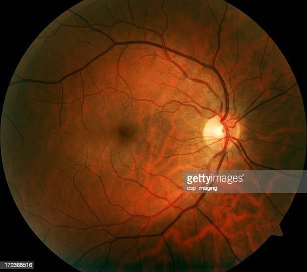 human retina - capillary body part stock photos and pictures