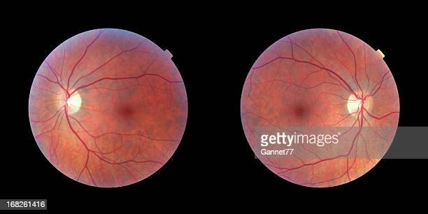 human retinas - left and right eye - retinal scan stock pictures, royalty-free photos & images