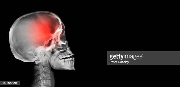Human scull with headache tumor
