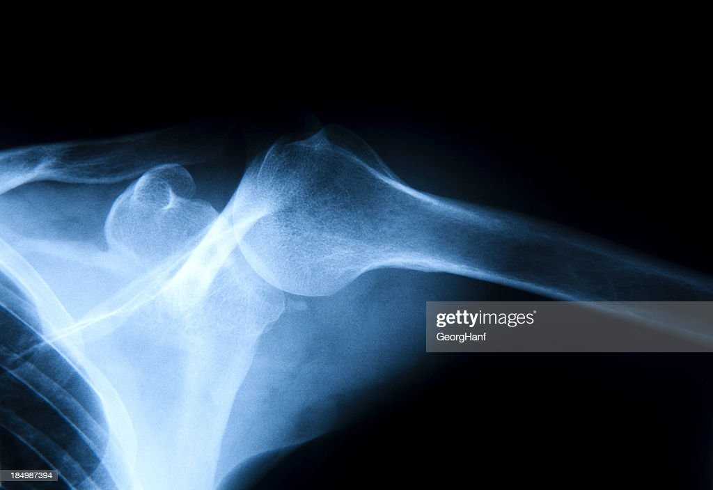 Human Shoulder : Stock Photo