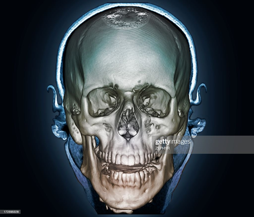 Human Skull 3d Ct Scan Stock Photo Getty Images