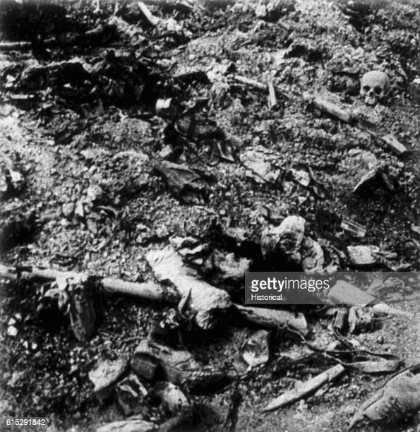 A human skull and various human body parts[] litter a battlefield after the Battle of Verdun 1916 | Location near Verdun France