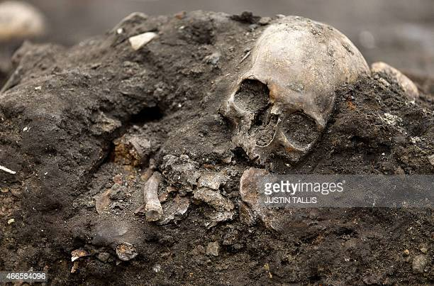 A human skull is pictured during excavation work at the Bedlam burial ground in London on March 17 2015 Archaeologists in London have begun digging...