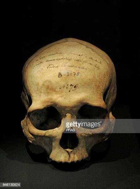 Human skull located in a funerary mound 1700500 Ac Hasslow Halland region Historical Museum Stockholm Sweden