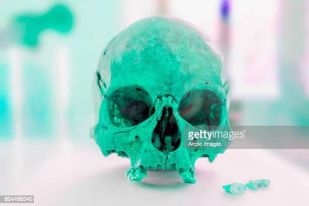 Human Skull on display