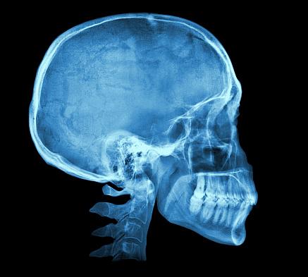 Human skull X-ray image 467836386