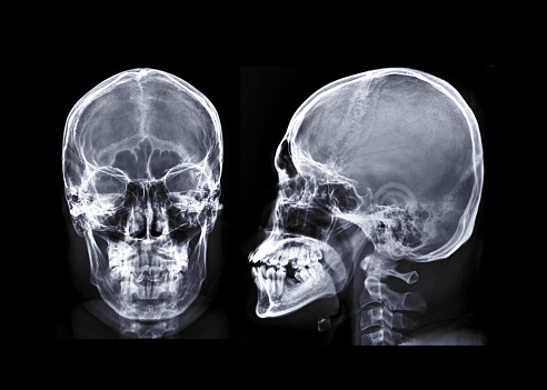 Human Skull X-ray images AP and Lateral View isolated on Black Background 1060041694