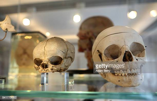 Human skulls are seen on display at an anatomical history exhibition on June 20 2016 in Berlin Germany The city of Berlin features several macabre...