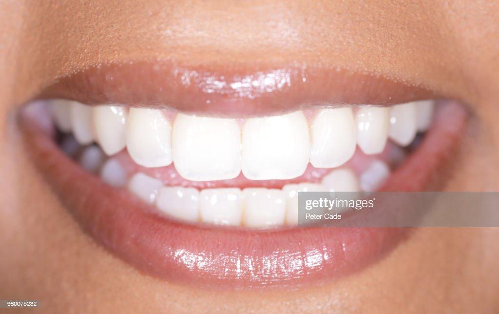 Human smile, white teeth : Stock Photo