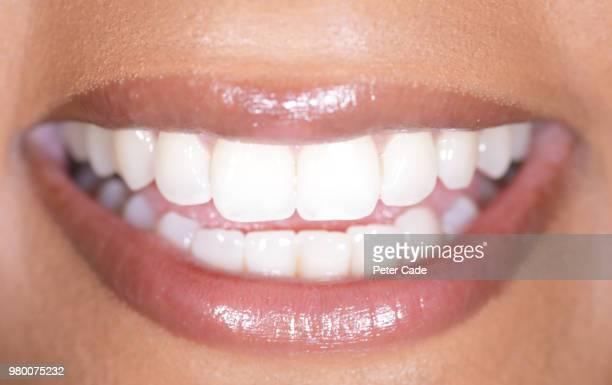 human smile, white teeth - tandblekning bildbanksfoton och bilder
