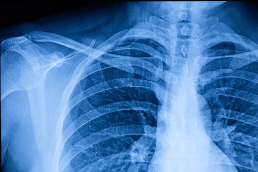 Human Thoracic cavity X-ray Film 1212285302