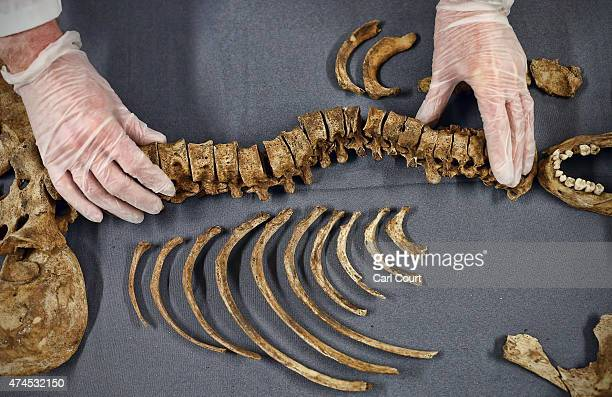 HumanOosteologist holds a spinal column that was affected by scoliosis as it undergoes evaluation on May 13 2015 at the Museum of London Archaeology...