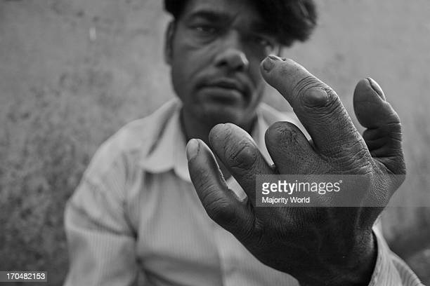 Humayun Kabir has lost some of his fingers more than 15 years ago in an accident while working at the shaving machine Part of the story Grey Reality...