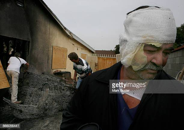 Humberto Delgado with bandages covering his burns walks around his home in Rialto where his two grandsons perished in an overnight fire. Delgado...