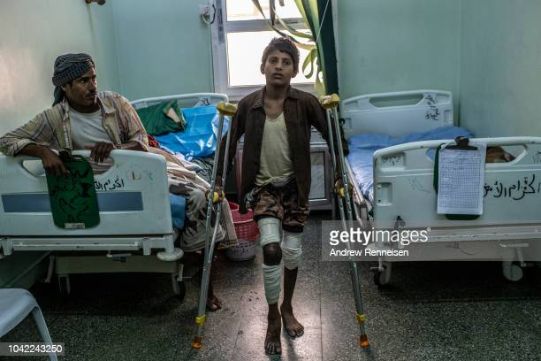 Humedan Hussin Abdullah stands with his crutches at a government hospital on September 23 2018 in Aden Yemen Abdullah is waiting in the hospital to...