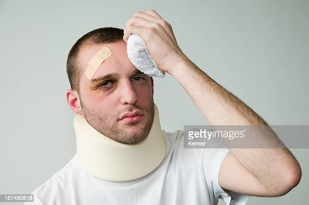 hurt young man - bruise stock pictures, royalty-free photos & images