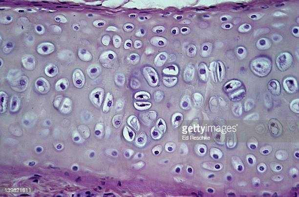 Hyaline cartilage; supporting connective tissue, bronchus. 100X at 35mm. Shows: chondrocytes (cartilage cells), matrix (intercellular material), lacunae, and perichondrium.