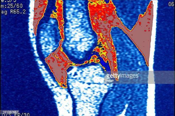 Hydrarthrosis Mri Sagittal View