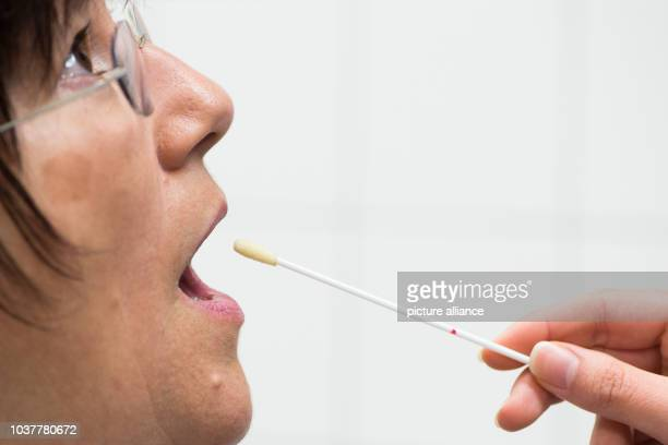 A hygiene worker takes an oral sample from fellow hygiene worker Ruth Dallig in Kassel Germany 27 April 2017 Since July 2015 patients at the MRE...
