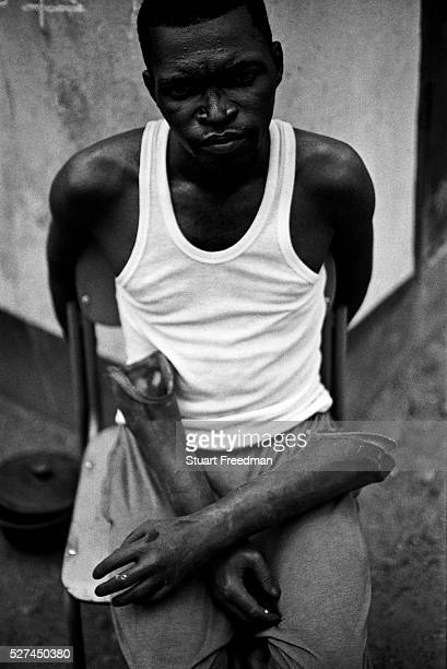 Ibrahim a double amputee and his cosmetic prothesis Hastings camp Freetown Rebel forces the Revolutionary United Front in Sierra Leone systematically...