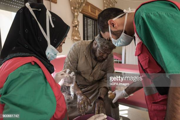 Ibrahim Bitar injured and burned by an airstrike He lost his daughter and son a night before he could escape from Raqqa His oldest son killed two...