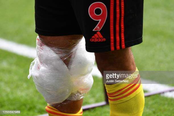 Ice is seen on the knee of Troy Deeney of Watford after the Premier League match between Watford FC and Newcastle United at Vicarage Road on July 11...