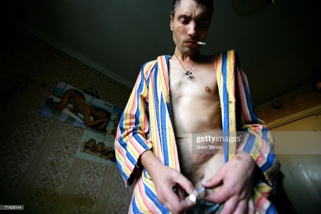 Igor, 37, is a former soldier who fought in Afganistan shoots drug into his groin on August 12, 2005 in Poltava, Ukraine. It was there that he began to use drugs and today his life revolves entirely around his small apartment and ensuring his supply. He is unsure as to wether he is HIV positive and he has a bad case of Septicemia and many other drug related health issues. Getty Images is partnering with the Global Business Coalition on HIV/AIDS ongoing projects.
