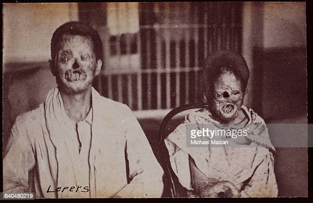 Illustrating the grossly disfiguring effects of leprosy two victims in China ca 1880s1890s