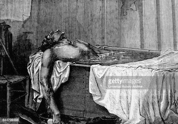 Illustration depicting the suicide of Horace Wells an American dentist who pioneered the use of anaesthesia in dentistry specifically nitrous oxide...