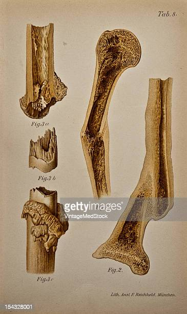 Illustration from 'Atlas and Epitome of Traumatic Fractures and Dislocations' 1902 Fig 1 Cross section of the humerus showing a fracture slight...