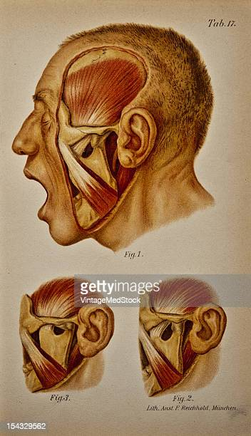 Illustration from 'Atlas and Epitome of Traumatic Fractures and Dislocations' 1902 Fig 1 Double dislocation of the lower jaw artificially produced...