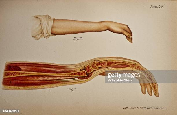 Illustration from 'Atlas and Epitome of Traumatic Fractures and Dislocations' 1902 Fig 1 Anatomic specimen showing a longitndinal section of the left...